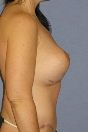 Breast Lift Before & After Patient #4055