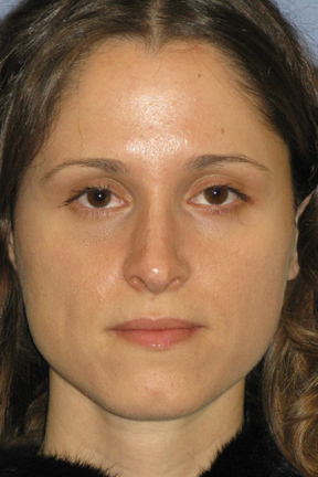 Rhinoplasty Before & After Patient #3214