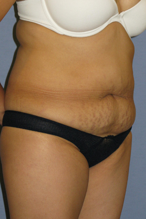 Tummy Tuck Before & After Patient #3596