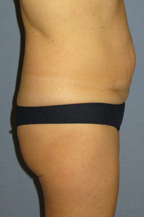 Tummy Tuck Before & After Patient #3582
