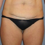 Tummy Tuck Before & After Patient #3591