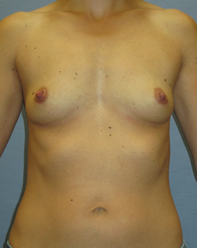 Breast Augmentation Before & After Patient #3674