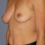 Breast Augmentation Before & After Patient #3825