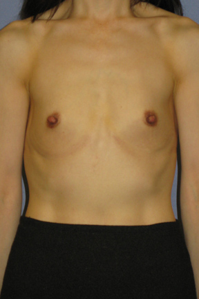 Breast Augmentation Before & After Patient #3832