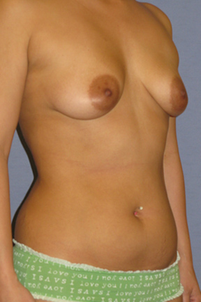 Breast Augmentation Before & After Patient #3835