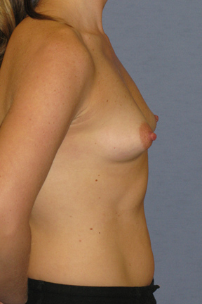 Breast Augmentation Before & After Patient #3863