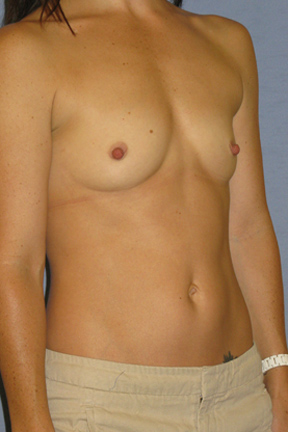 Breast Augmentation Before & After Patient #3868