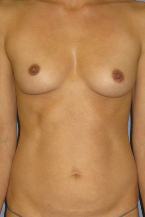 Breast Augmentation Before & After Patient #3939