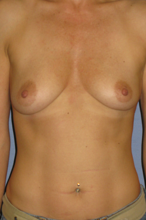 Breast Augmentation Before & After Patient #3896