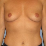 Breast Augmentation Before & After Patient #3940