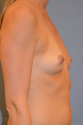 Breast Augmentation Before & After Patient #3912