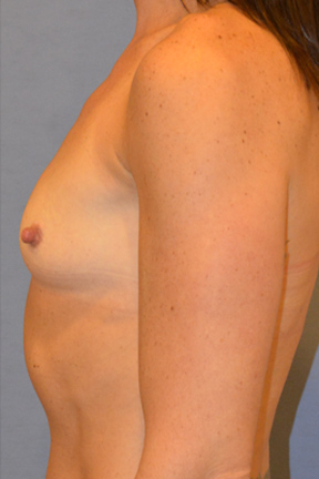 Breast Augmentation Before & After Patient #3774