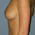 Breast Augmentation Before & After Patient #3663
