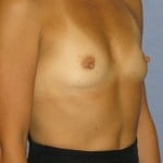 Breast Augmentation Before & After Patient #3707
