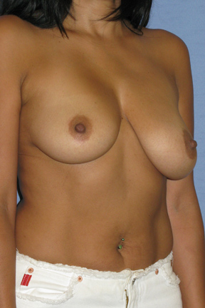 Breast Augmentation Before & After Patient #3712