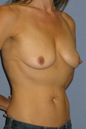 Breast Lift Before & After Patient #4034