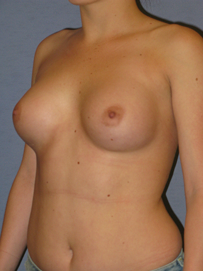 Breast Implants Revision Before & After Patient #3725