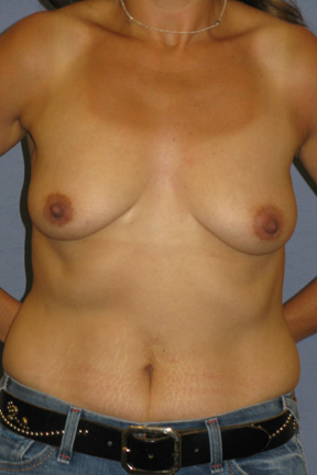 Breast Lift Before & After Patient #4044