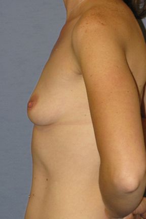 Breast Augmentation Before & After Patient #3738