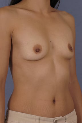Breast Augmentation Before & After Patient #3749
