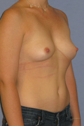 Breast Augmentation Before & After Patient #3752