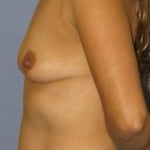 Breast Augmentation Before & After Patient #3782
