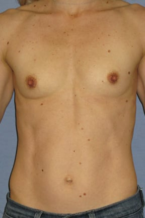 Breast Augmentation Before & After Patient #3785