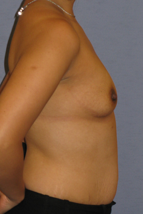 Breast Augmentation Before & After Patient #3810