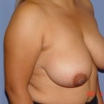 Breast Augmentation Before & After Patient #3941