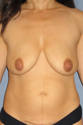 Breast Lift Before & After Patient #3958