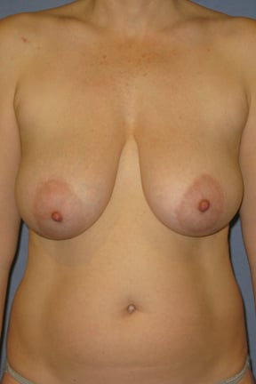 Breast Lift Before & After Patient #3967
