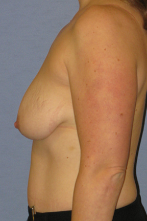 Breast Augmentation Before & After Patient #3977