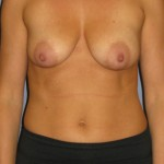 Breast Lift Before & After Patient #4001
