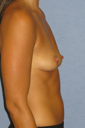 Breast Augmentation Before & After Patient #4013