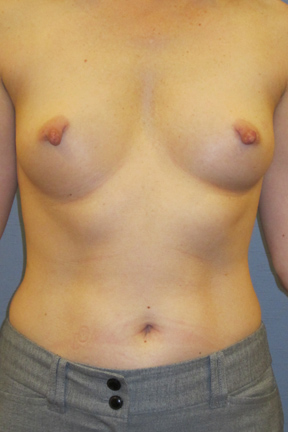Breast Lift Before & After Patient #4018