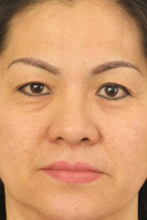 Eyelid Surgery Before & After Patient #3618