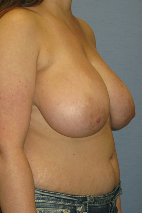 Breast Lift Before & After Patient #3569