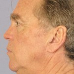 Facelift Before & After Patient #4072