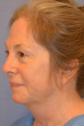 Facelift Before & After Patient #4062