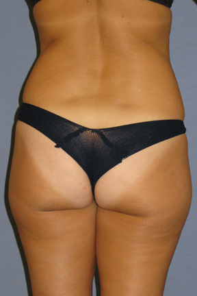 Liposuction Before & After Patient #3508