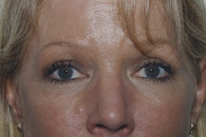Eyelid Surgery Before & After Patient #4546