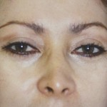 Eyelid Surgery Before & After Patient #4577