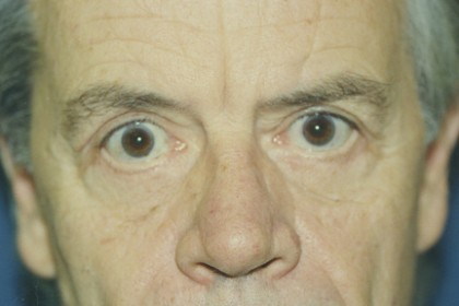 Eyelid Surgery Before & After Patient #4560