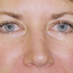 Eyelid Surgery Before & After Patient #4563