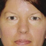 Eyelid Surgery Before & After Patient #4569
