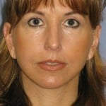 Facelift Before & After Patient #1598