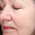 Halo Laser Before & After Patient #4679