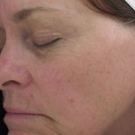 Halo Laser Before & After Patient #4664