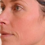 Halo Laser Before & After Patient #4667