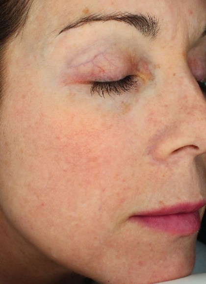 Halo Laser Before & After Patient #4670